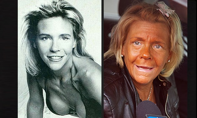 'Tanning Mom' Patricia Krentcil Wasn't Always So Bronzed