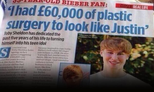 Man Spends $100,000 In 5 Year For Ongoing Surgery To Look Like Justin Bieber  2