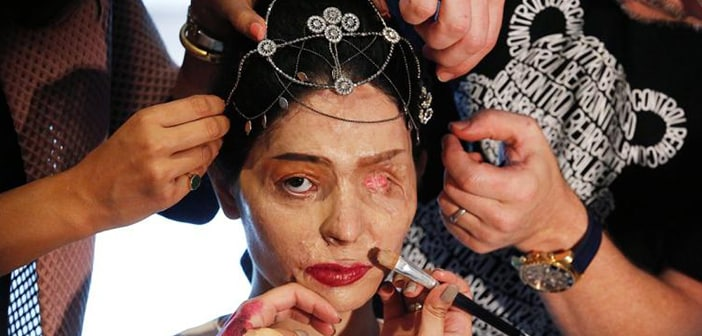Reshma Qureshi, The 19 Year-Old Girl Acid Attack Survivor/Spokesperson Modeled The Latest Fashions For NYFW 1
