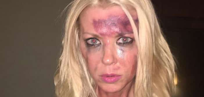 Tara Reid Uses Bruised Photo To Highlight The Effects Of Bullying
